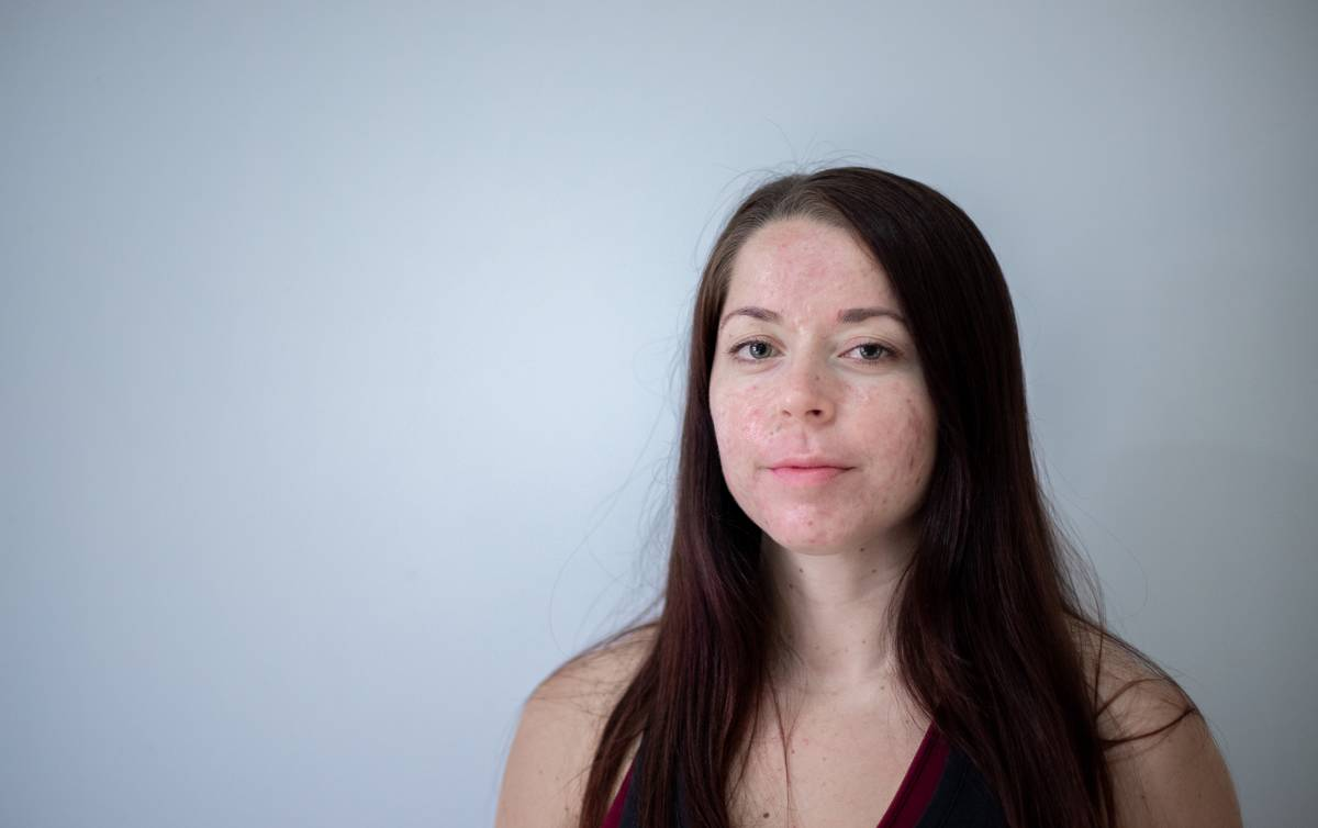 A woman has acne on her face.